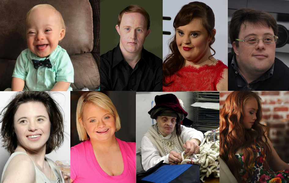Success in All Shapes: Celebrities with Down Syndrome